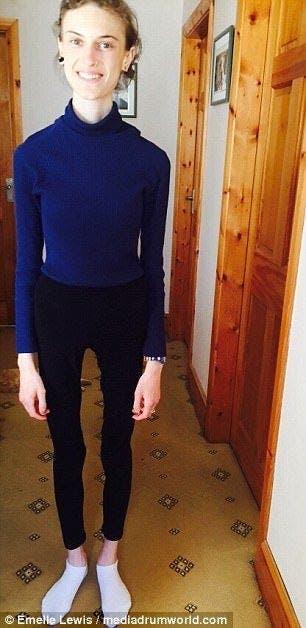 Une jeune fille anorexique montre des photos avant et après sa guérison et elle est devenue très jolie