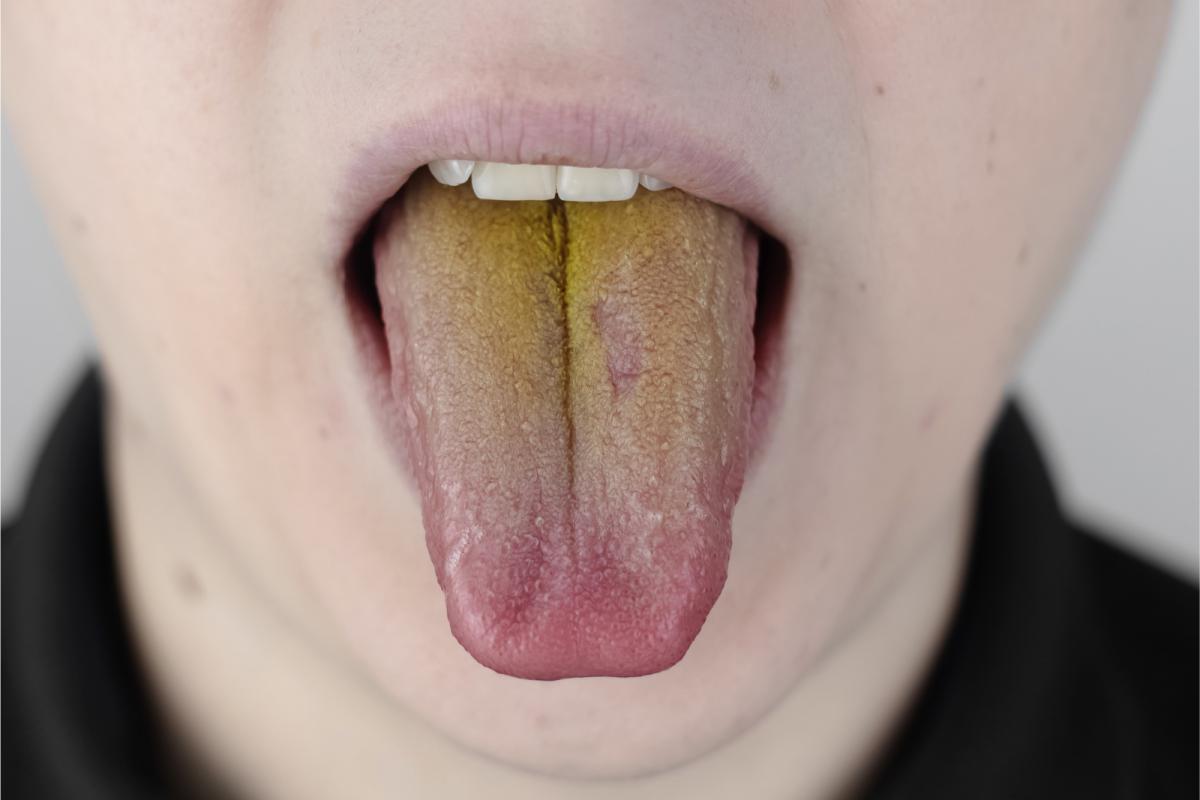 Une langue jaunâtre