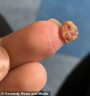 Une maman allait se faire amputer d'un doigt à cause d'une erreur au salon de beauté