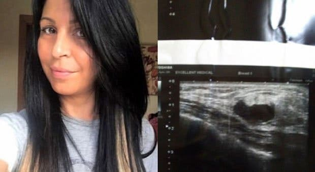 Une maman de 44 ans atteinte d'un cancer du sein mortel est guérie en utilisant ce produit étonnant