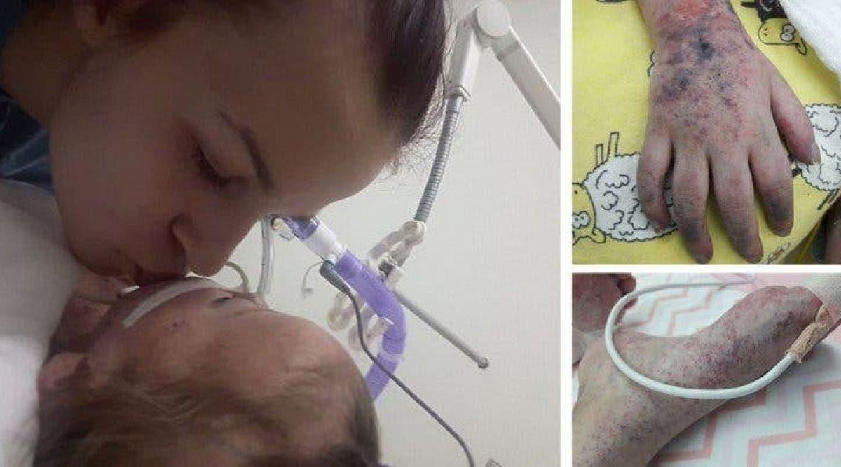 Une maman publie des photos bouleversantes de sa fille décédée de la rougeole