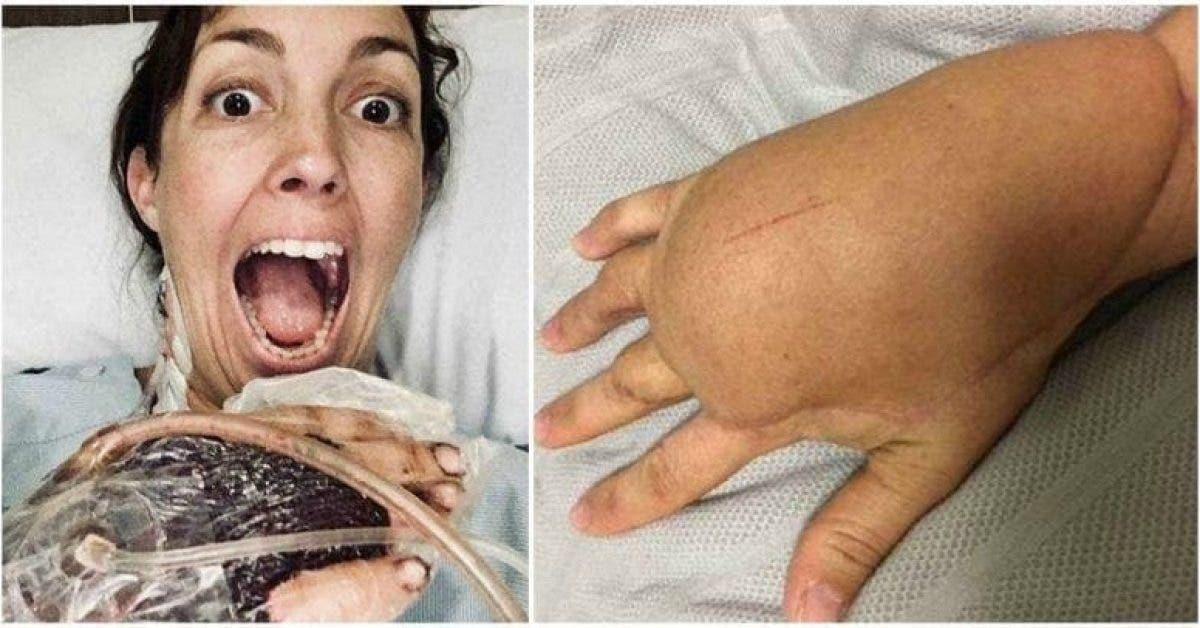Une maman se bat pour sa vie après avoir blessé son doigt