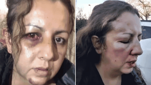 Une mère est violentée après avoir affronté le harceleur de sa fille