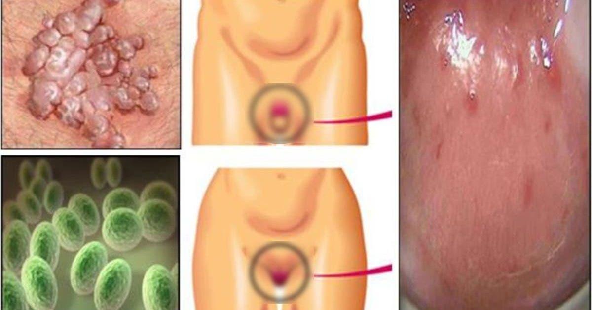 Cette nouvelle infection sexuellement transmissible se propage et touche des centaines de milliers de personnes