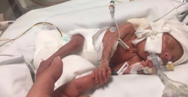 Une petit bébé de 680 grammes né et se bat pour vivre