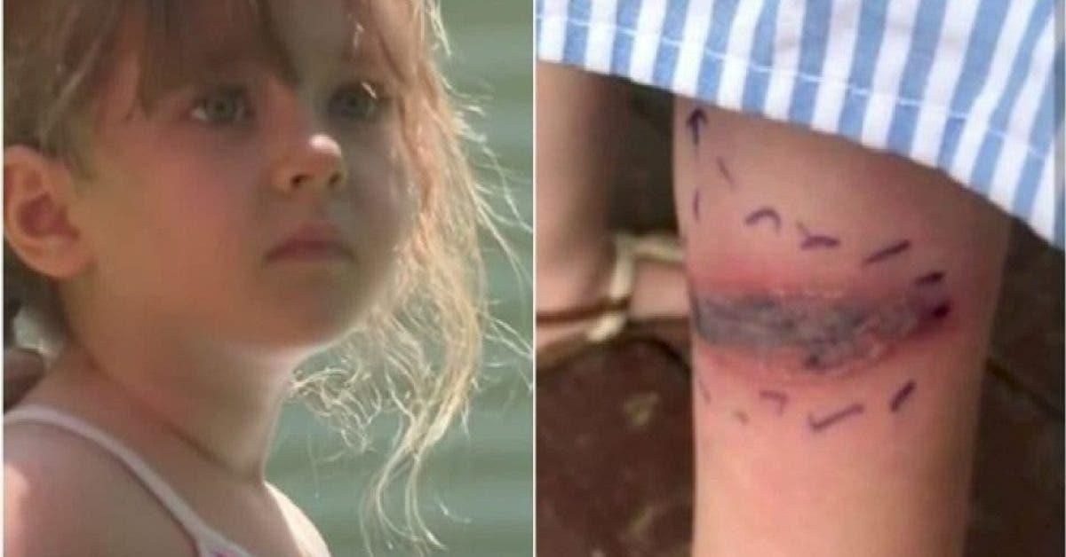Une petite fille découvre une tache dangereuse sur sa jambe