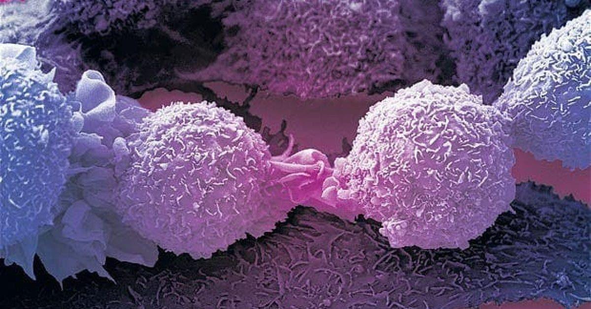 Une pratique sexuelle peut guérir le cancer