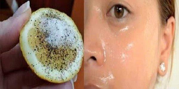 Une recette au citron pour effacer les taches du visage et avoir une peau éclatante