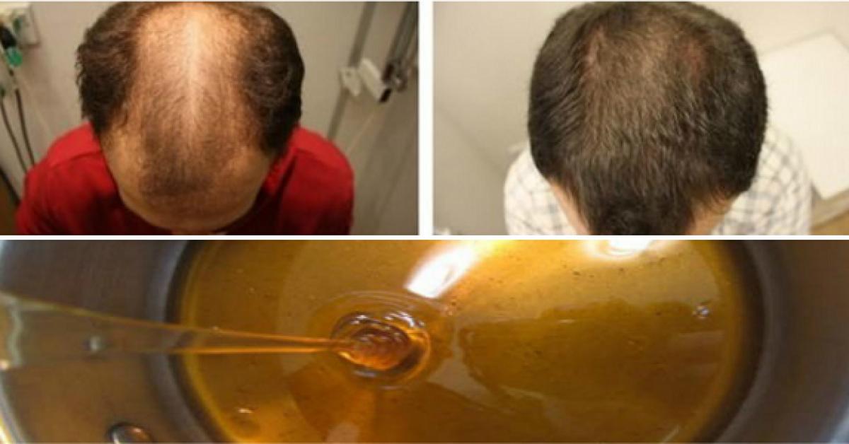 Une recette miracle contre la calvitie en 2 jours les cheveux commencent a repousser 1