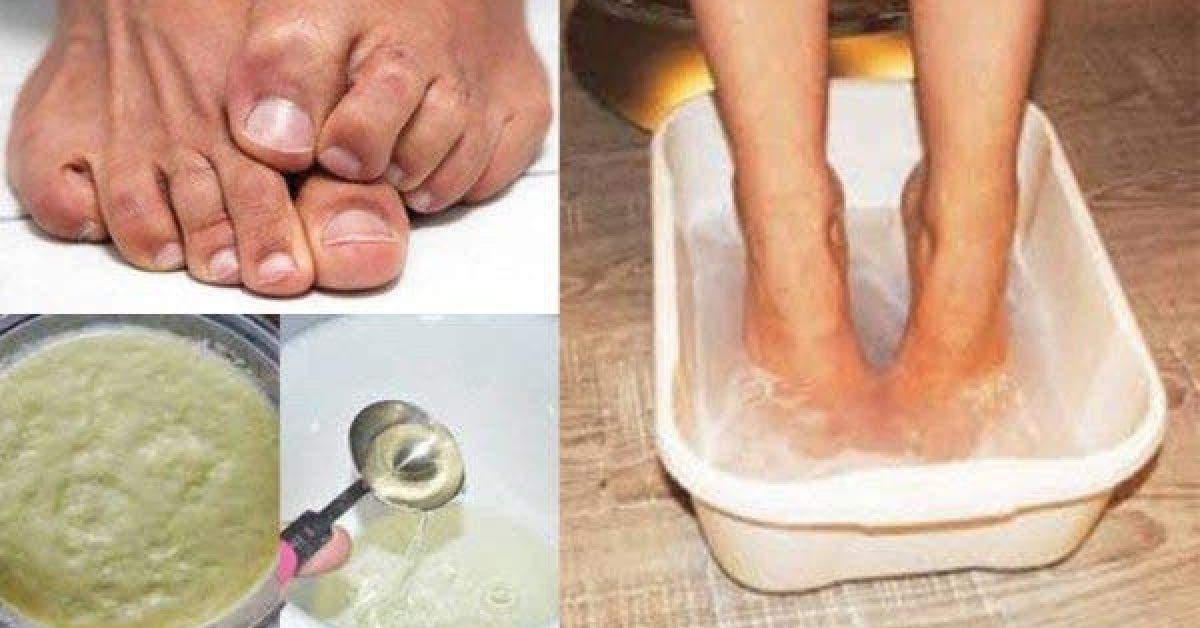 Une recette puissant pour se debarrasser de la mauvaise odeur des pieds 1