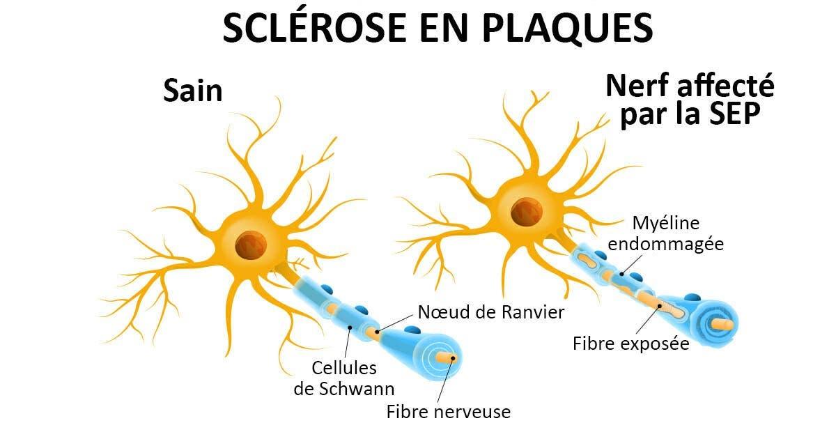 Une scientifique est sur le point de guérir la sclérose en plaques pour 2,3 millions de personnes