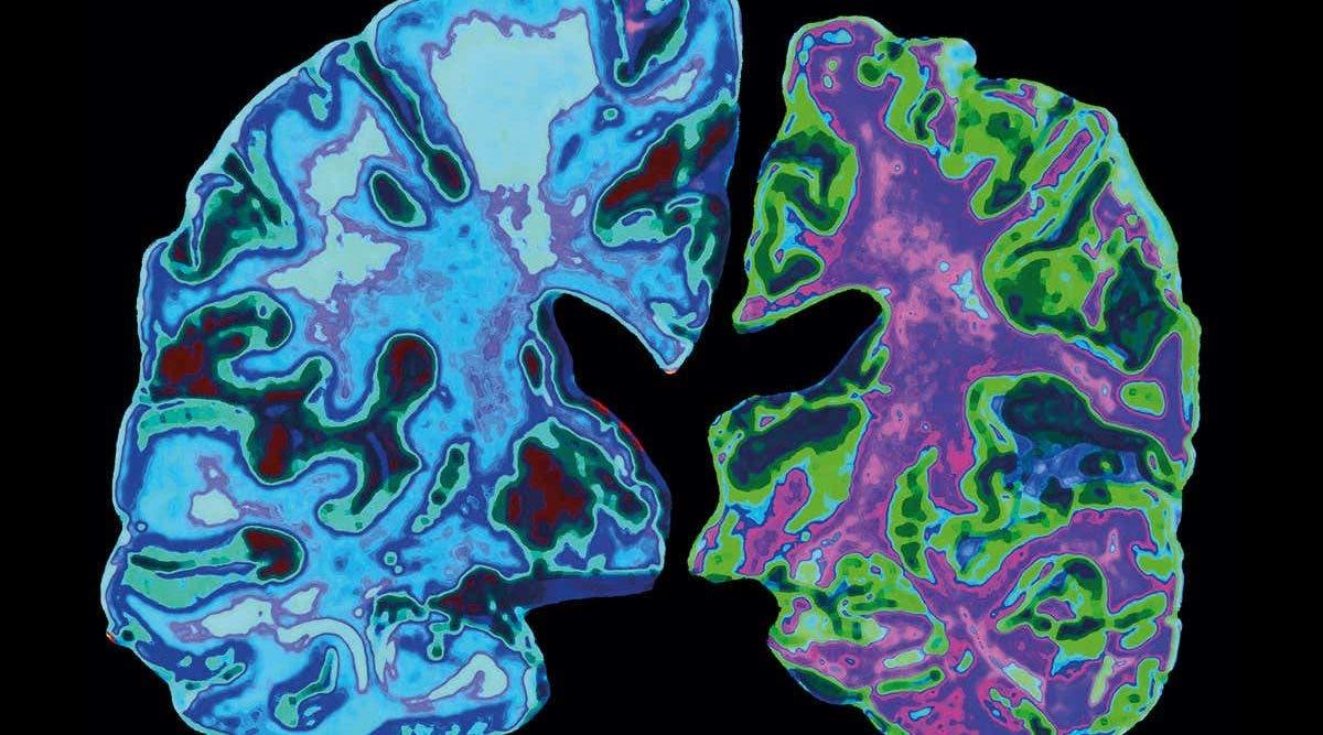 Une thérapie utilisant la lumière et le son permettrait d'éliminer les plaques amyloïdes responsables de la maladie d'Alzheimer