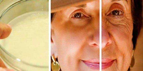 Utiliser du citron et du bicarbonate de soude pour éliminer les taches brunes et les rides