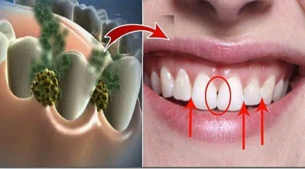 Venez à bout de la mauvaise haleine en 5 minutes ! Ce remède miracle anéantit les bactéries de la bouche