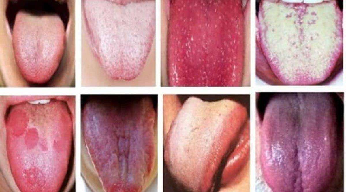 Voici ce que la couleur de votre langue révèle sur la santé