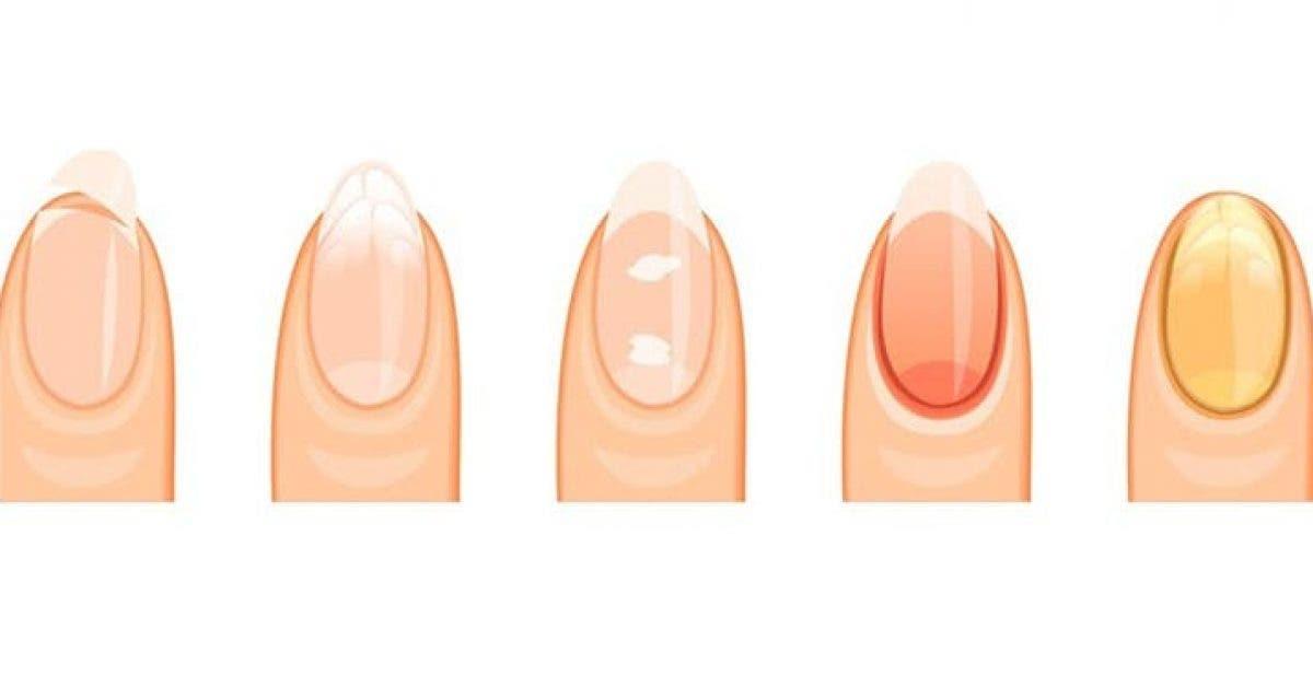 Voici ce que revelent vos ongles a propos de votre sante 1