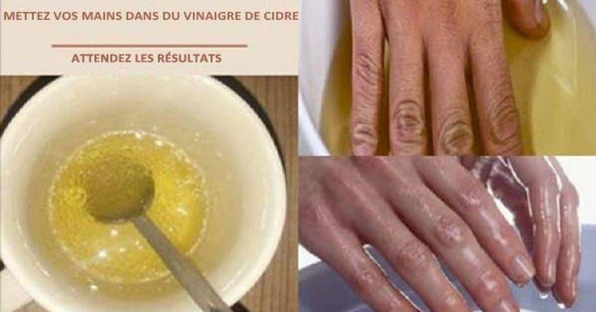 Voici ce qui arrive si vous mettez vos mains dans du vinaigre de cidre 1