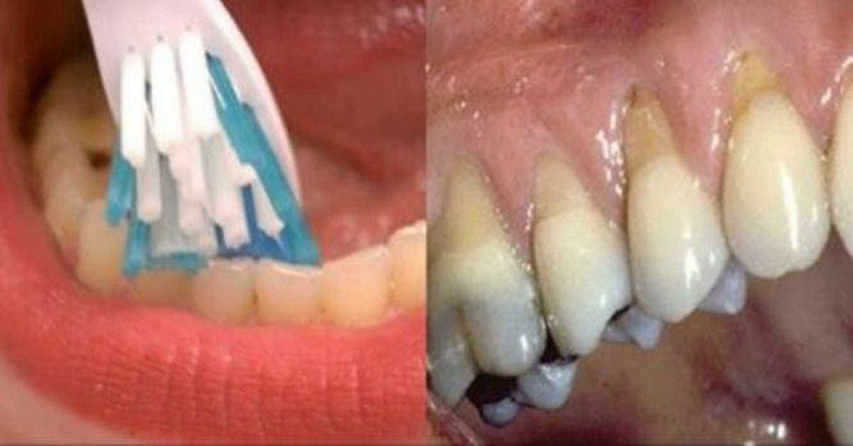 Voici ce qui arrive si vous vous brossez les dents tres rapidement 1