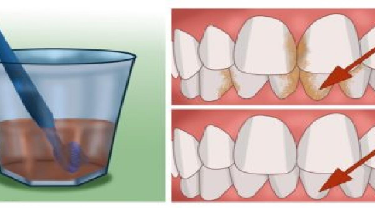 Voici comment avoir des dents blanches naturellement à la maison en 1 minute (marche à 100%)