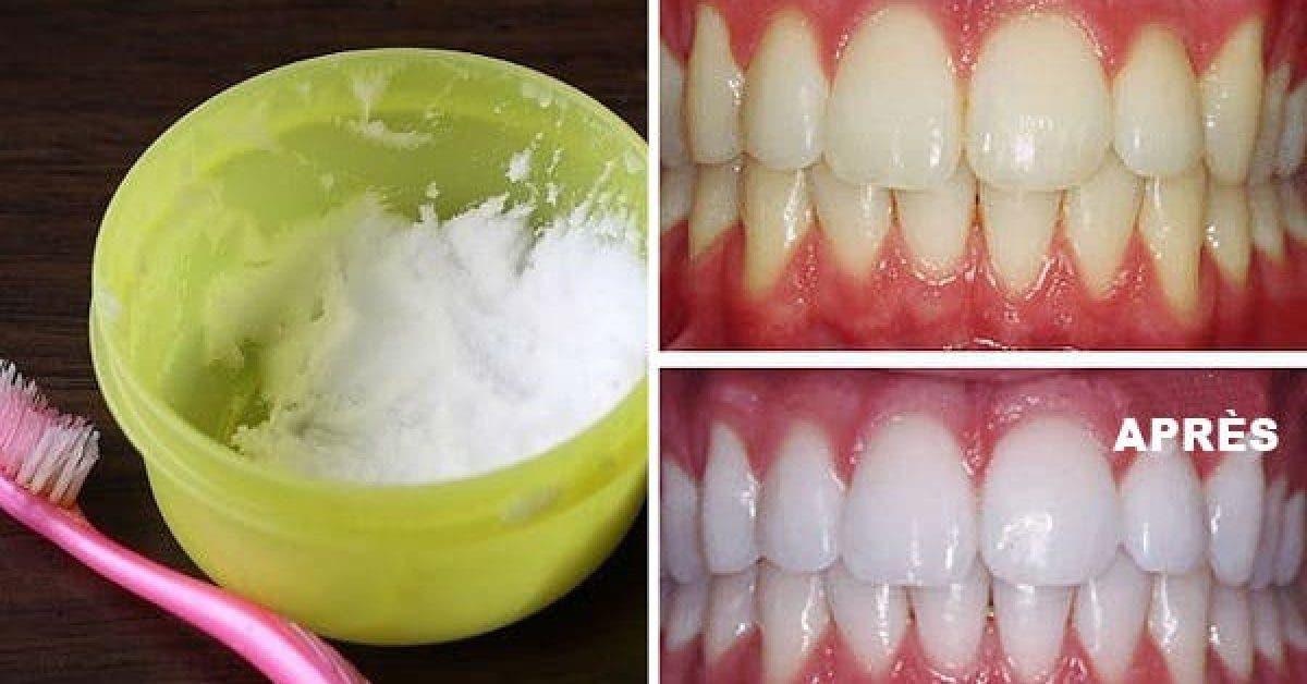 Voici comment avoir des dents blanches naturellement et rapidement 1