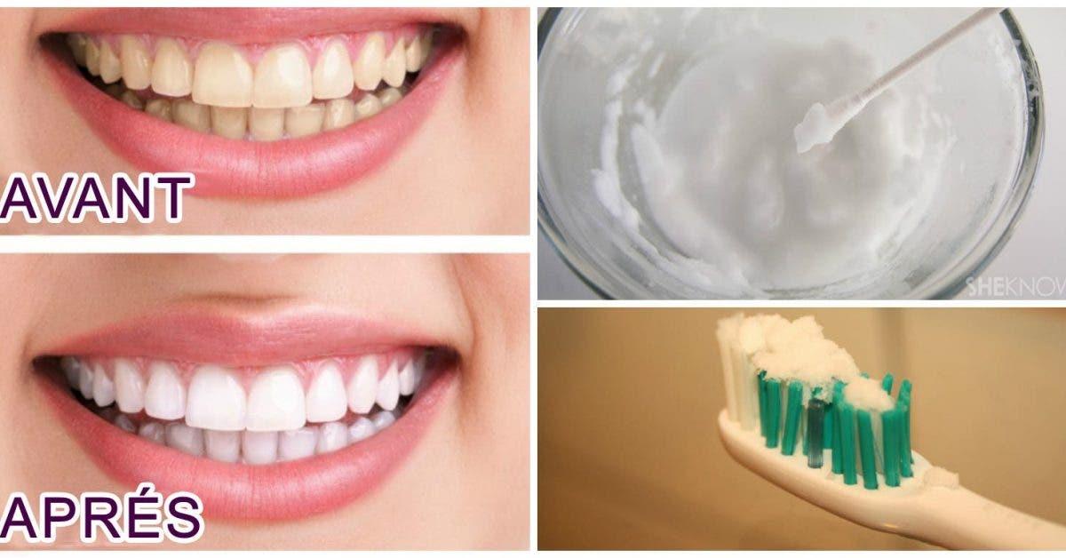 Voici comment avoir rapidement des dents dune eclatante blancheur 1
