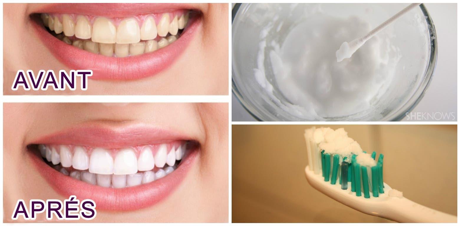 voici comment avoir rapidement des dents d une clatante blancheur. Black Bedroom Furniture Sets. Home Design Ideas