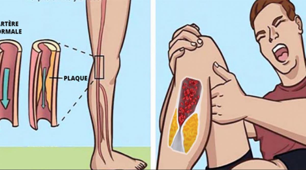 Les caillots sanguins peuvent être dangereux pour la santé et entrainer des maladies cardiovasculaires. Voici comment fluidifier le sang et réduire la formation de ces caillots mortels.