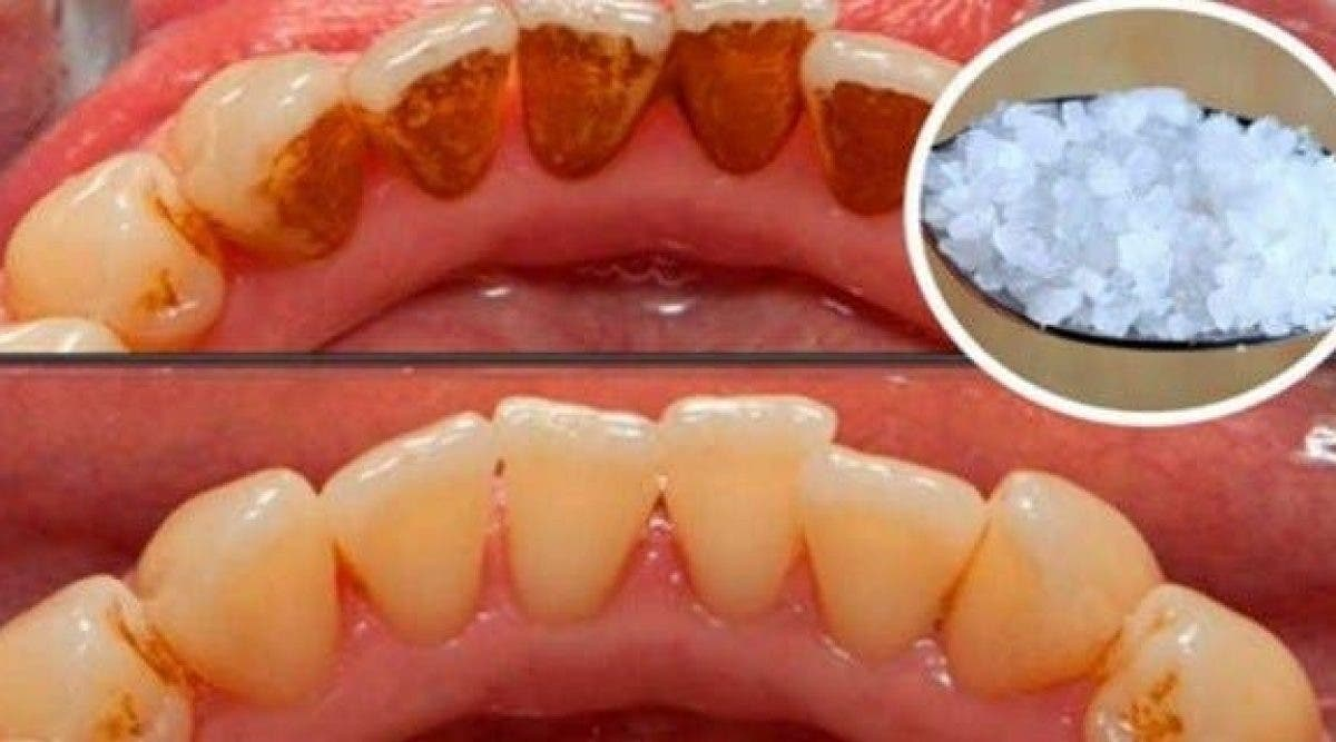 Voici comment blanchir des dents extremement jaunes et supprimer les plaques de tartre incrustees
