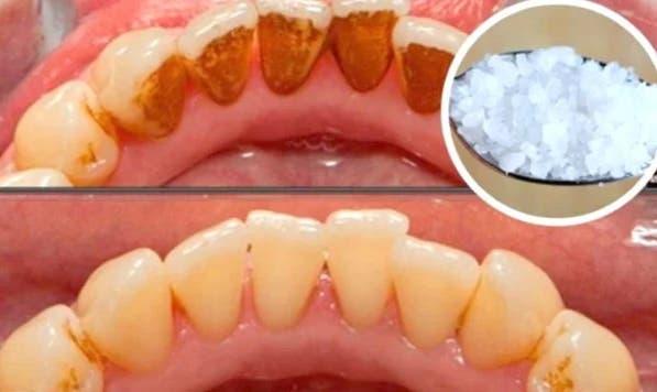 Voici comment blanchir des dents jaunes.