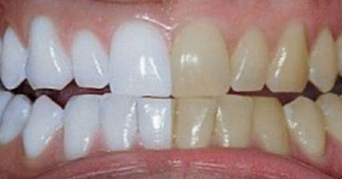 Voici comment blanchir ses dentsjpg 1