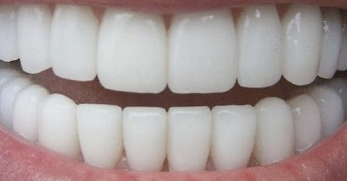 Voici comment blanchir vos dents en trois minutes chrono