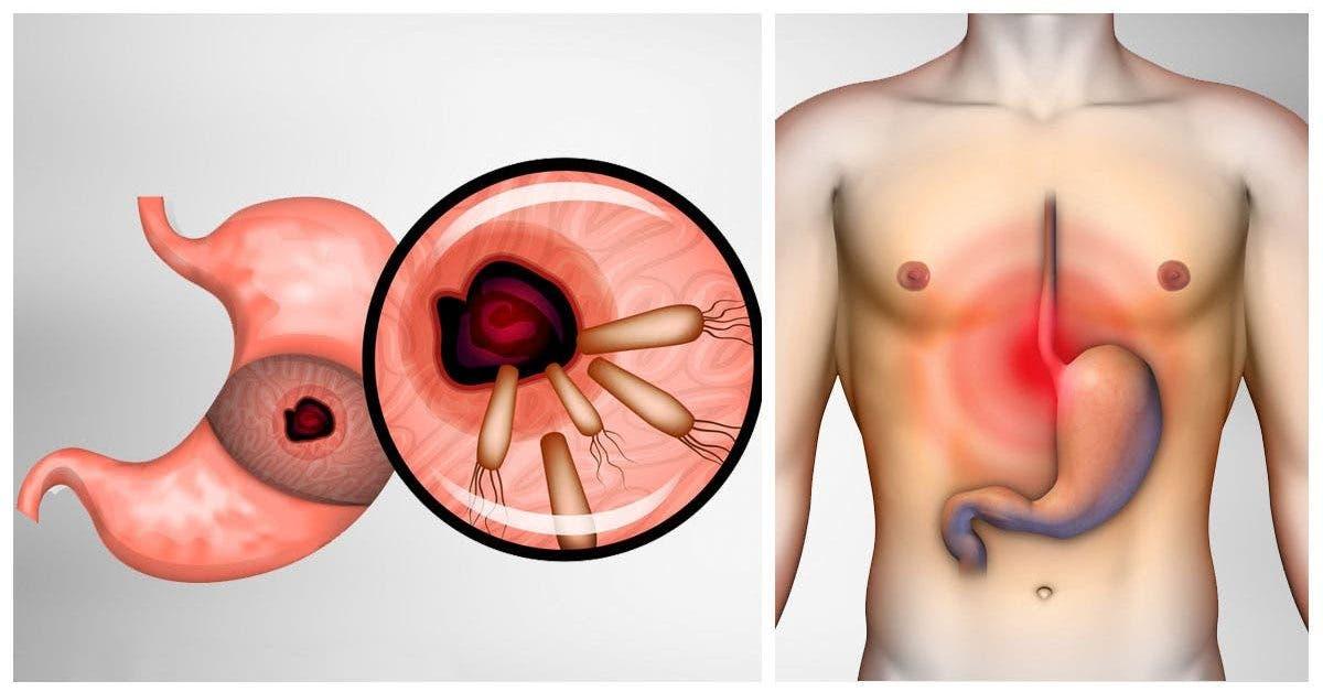 Voici comment éliminer les bactéries qui causent les brûlures d'estomac et des ballonnements