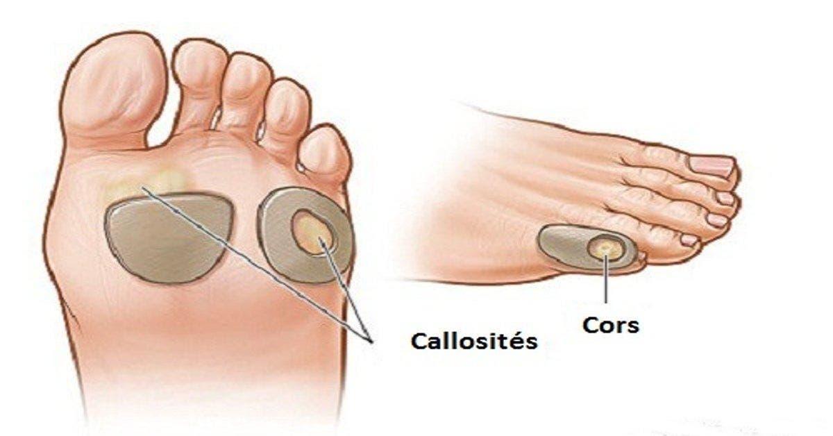Voici comment éliminer les cors au pied et les verrues naturellement et sans douleur