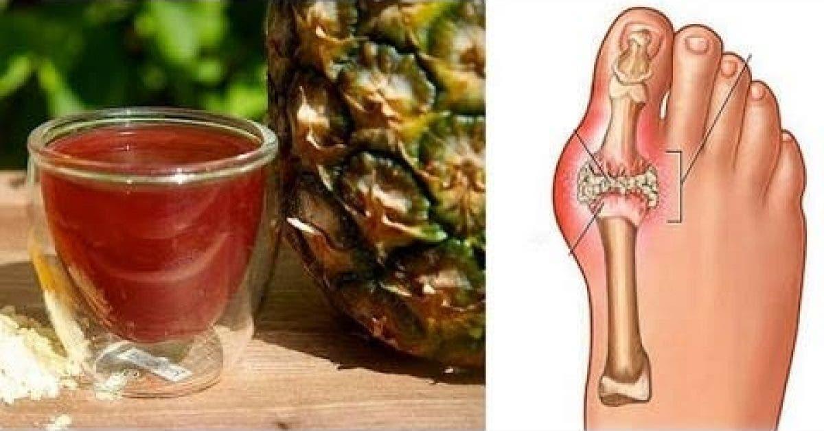 Voici comment éliminer les cristaux d'acide urique de votre corps rapidement pour prévenir la goutte et les douleurs articulaires