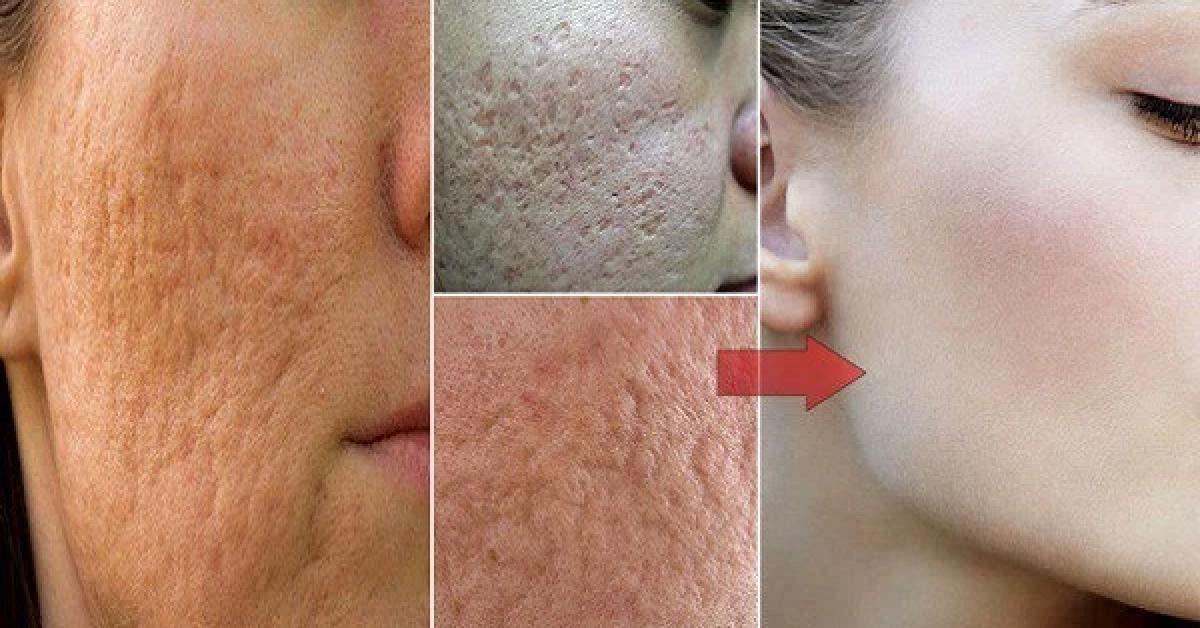 éliminer les pores de votre visage et retrouver une peau de bébé