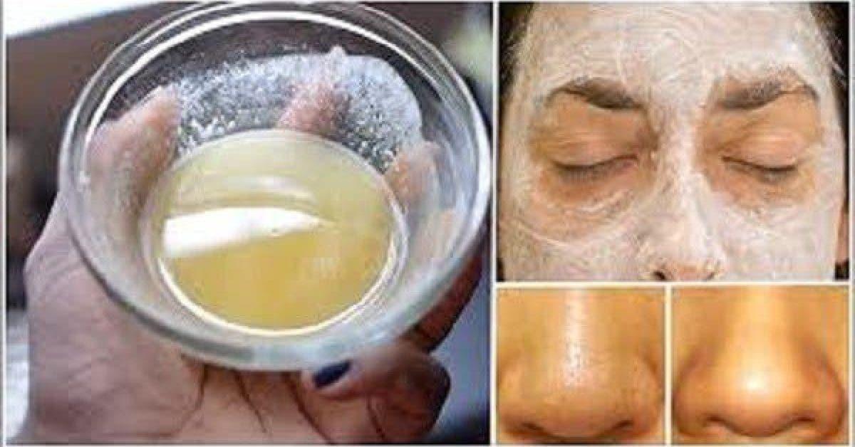 citron bicarbonate peau