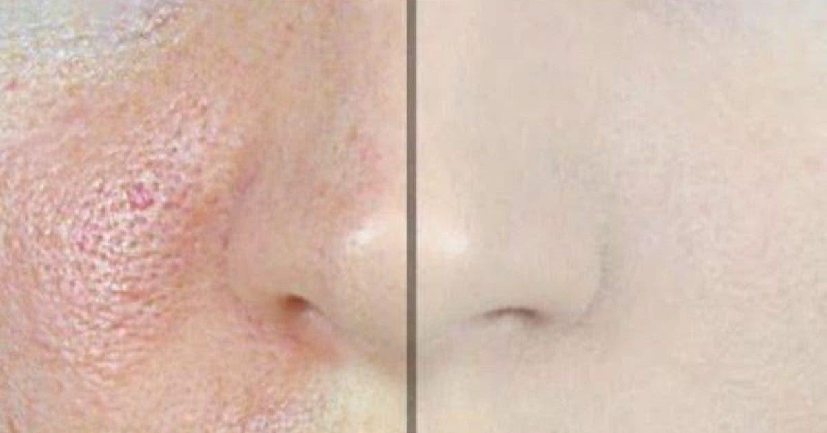 Voici comment faire disparaitre les pores dilates 1