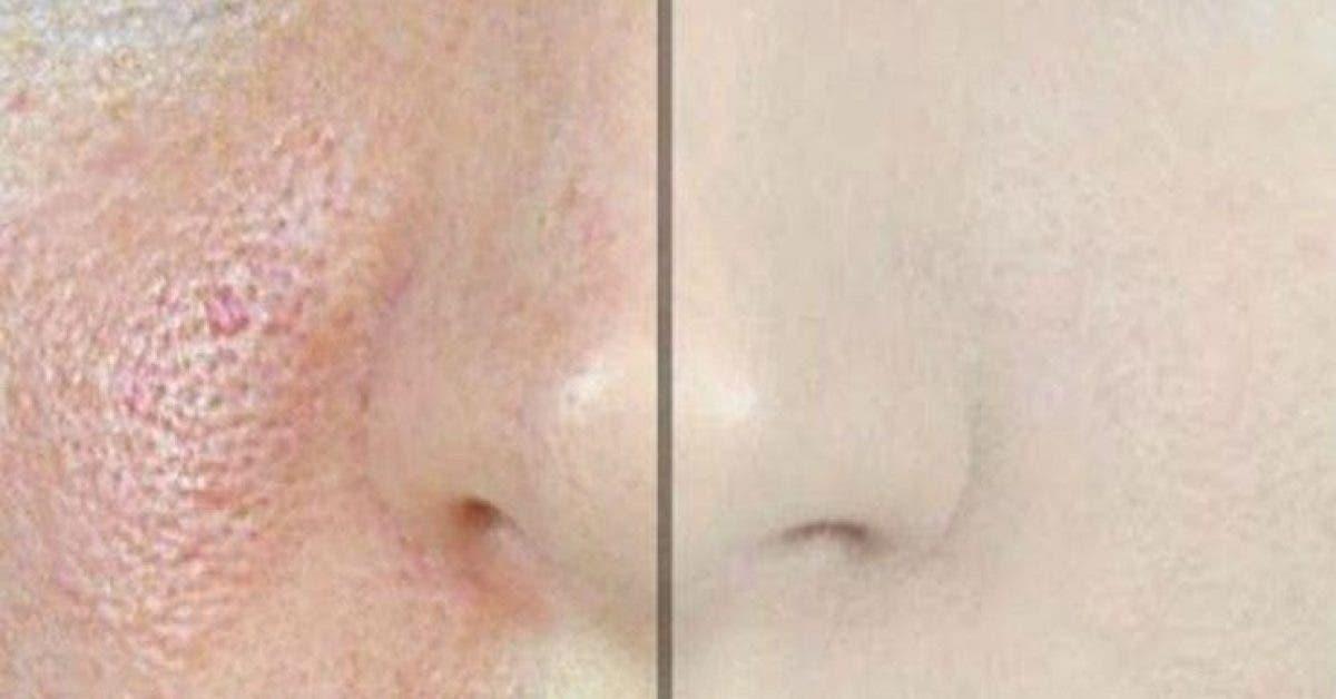 Voici comment faire disparaitre rapidement les pores dilates et avoir une peau parfaite 1