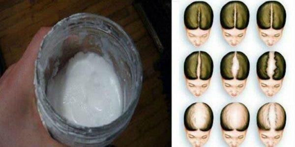 Voici comment j'utilise le bicarbonate de soude pour faire repousser mes cheveux