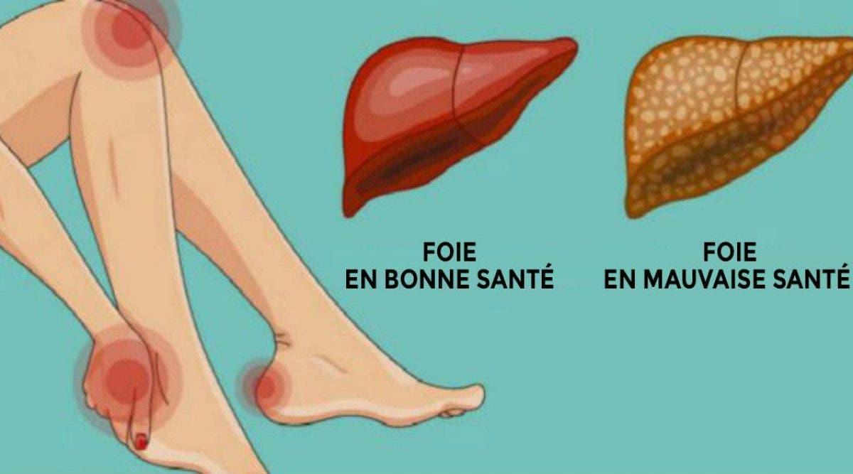 Ces signes indiquent que vous avez un foie paresseux ! Voici comment le détoxifier naturellement et vous sentir mieux !