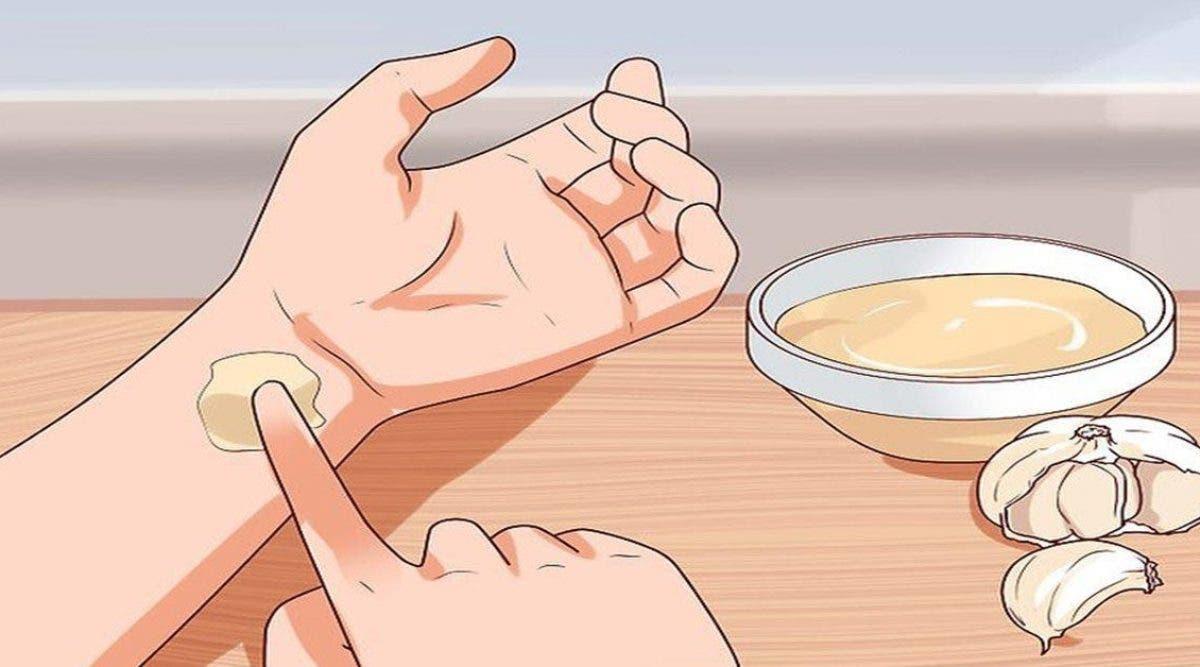 Voici comment ma grand-mère utilise de l'ail pour soigner les maux de dents