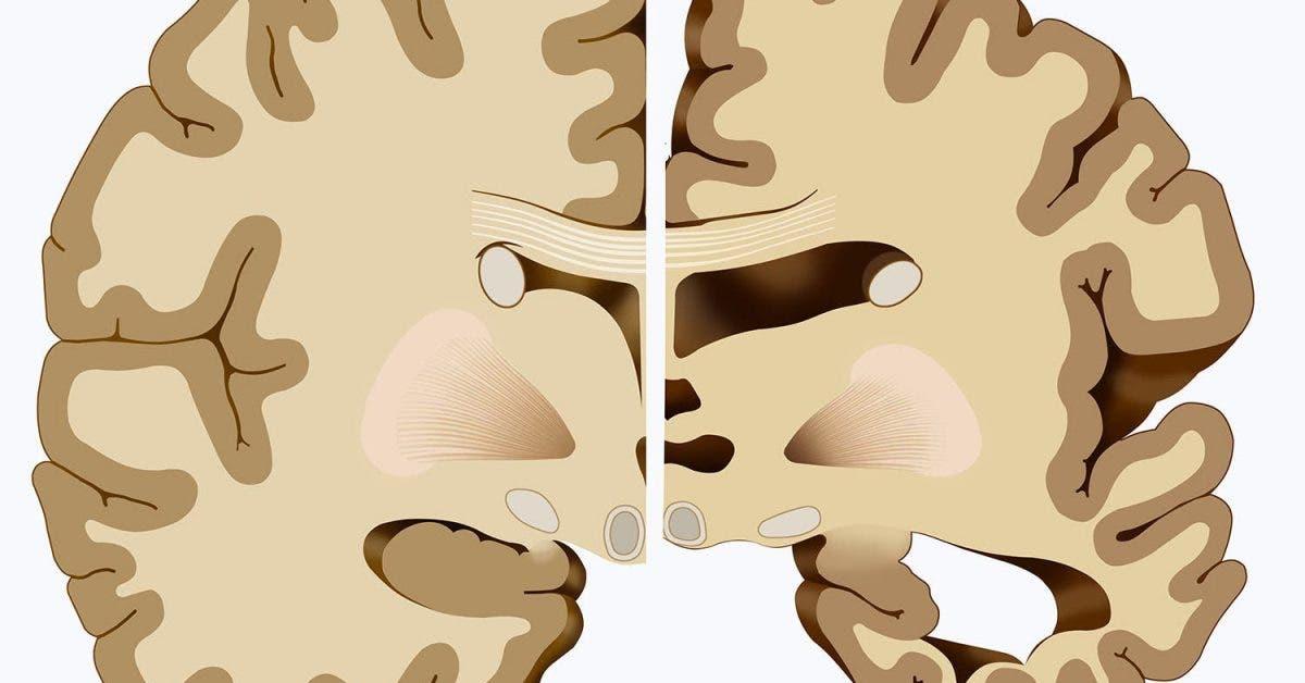 Voici comment protéger votre cerveau d'Alzheimer