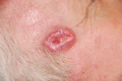 Voici comment reconnaitre un cancer de la peau