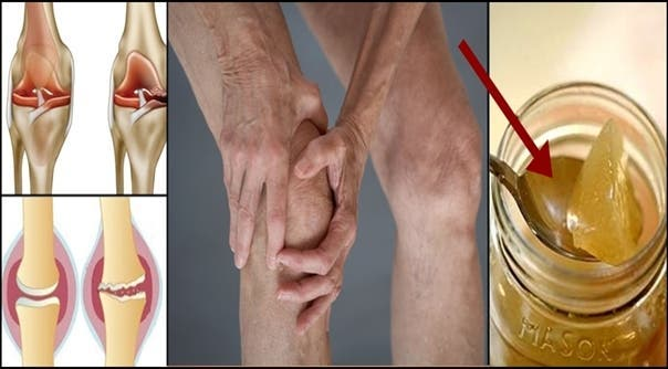 Here's how to regenerate knee cartilage naturally