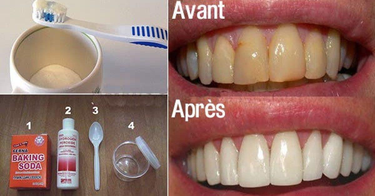 Voici comment se debarrasser de la plaque dentaire et des maladies de la gencive sans traitements couteux 1