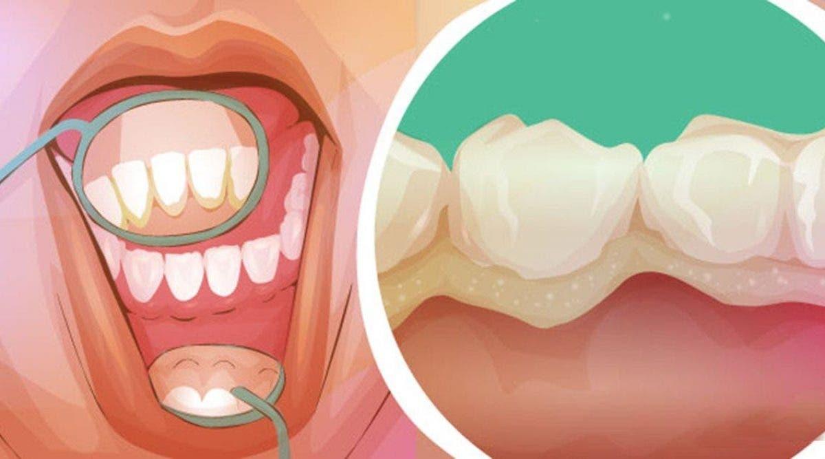 Voici comment se débarrasser de la plaque dentaire et des maladies des gencives