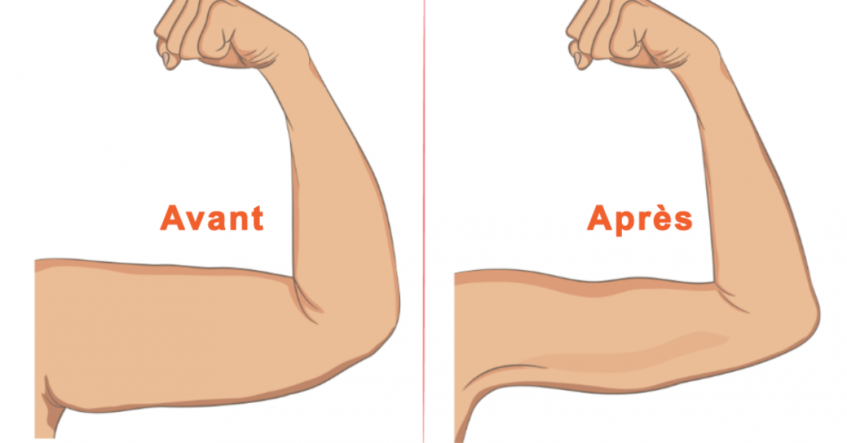 Voici comment se débarrasser des bras flasques pour toujours