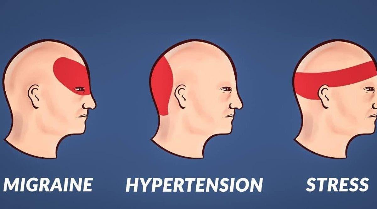 Voici comment se débarrasser des maux de tête en 5 minutes sans médicaments