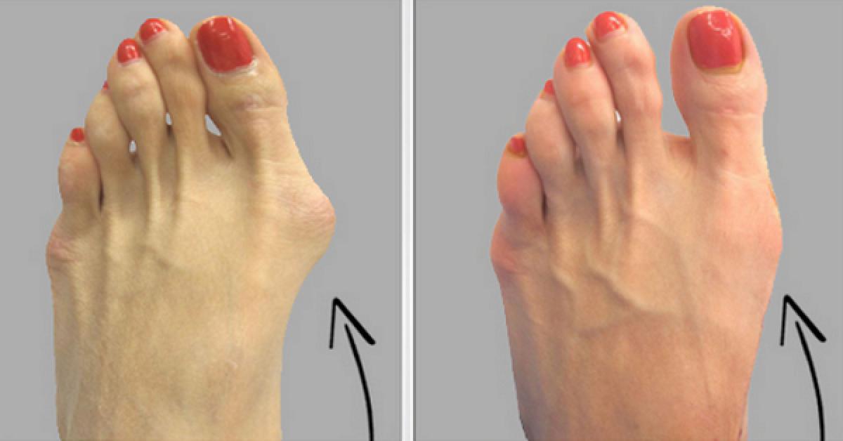 Voici comment se debarrasser des oignons de pieds naturellement 1 1