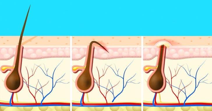 Voici comment se débarrasser des poils incarnés et éviter leur repousse